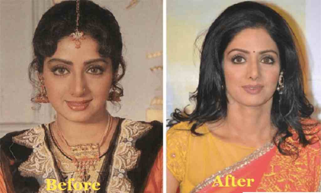 Changing the appearance with surgeries